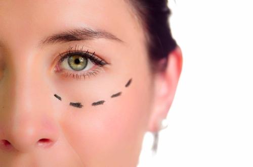 目の下のたるみの美容整形の効果が大きいのはどんな場合?