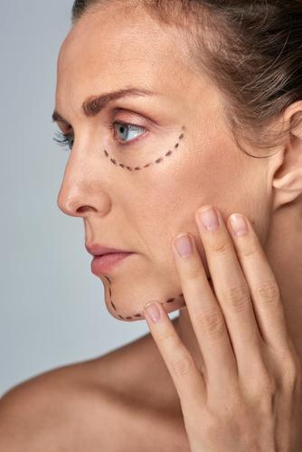 目の下のたるみの美容整形の修正が可能な場合、不可能な場合