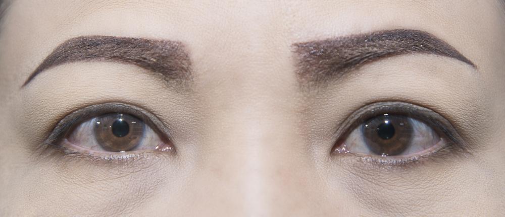 【口コミ】眉間のしわの美容整形をした体験談