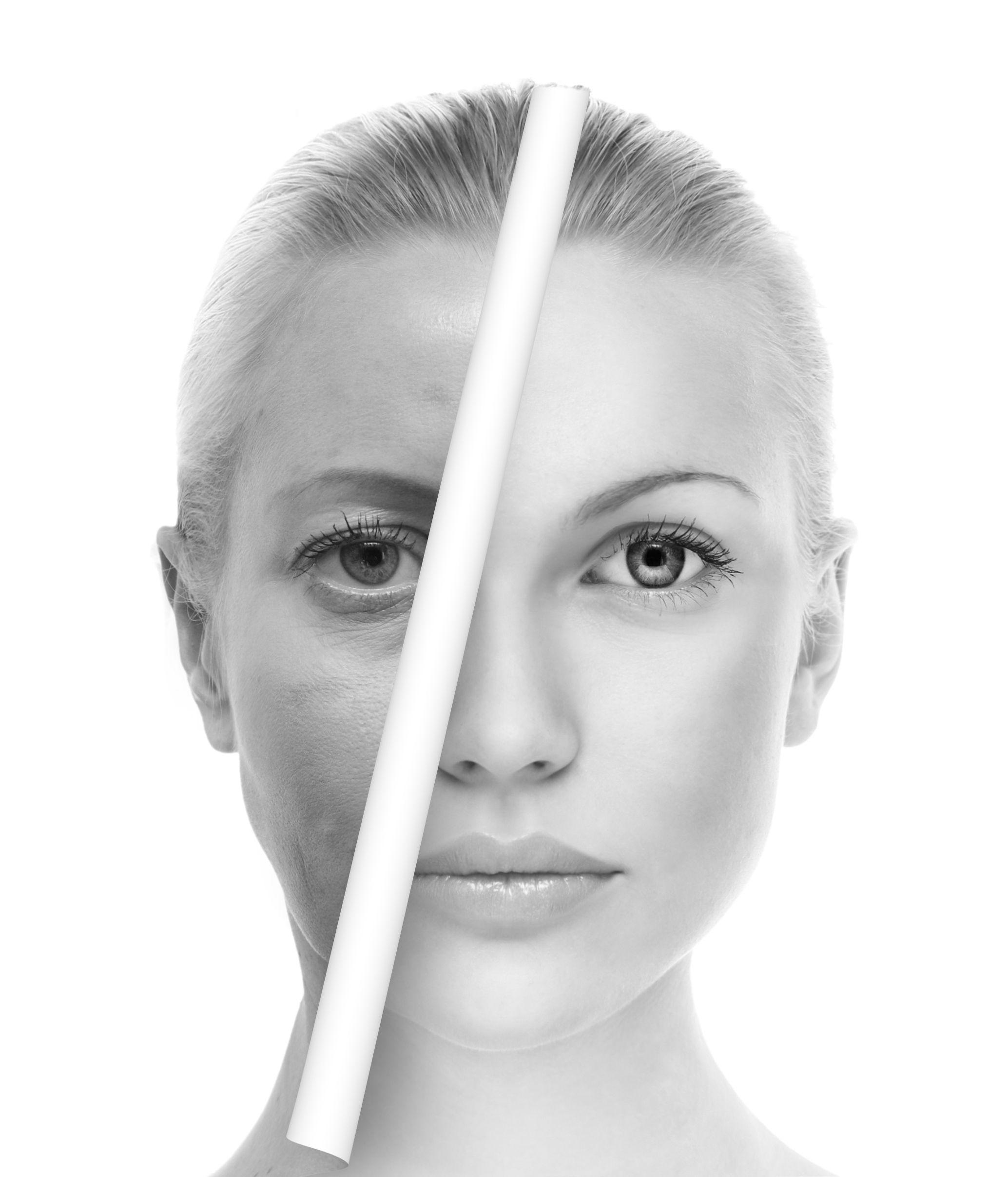 プレミアムPRP皮膚再生療法の修正