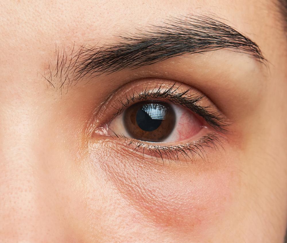 目の下のくまの美容整形の名医